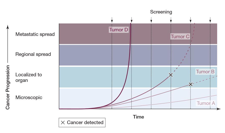 """Orientačná schéma zobrazuje progresiu rakoviny v čase. Pri tumore D je rast tak rýchly, že sa nestihne zachytiť. Tumor A má krivku rastu tak pomalú, že ho skríning nemá šancu zachytiť a žena s ním bez problémov dožije. Tumor C má rýchlosť rastu pomalšiu, no má schopnosť ženu usmrtiť. Skríning ho však môže zachytiť skôr a predĺžiť tak život. Tumor B rastie pomaly a človek by pravdepodobnejšie zomrel na niečo iné, je teda """"naddiagnostikovaný"""" skríningom. V čase skríningu však nie je možné zistiť, či sa dívame na tumor C alebo B, zvlášť keď sú tumory schopné svoj rast kedykoľvek nepredvídateľne zrýchliť."""