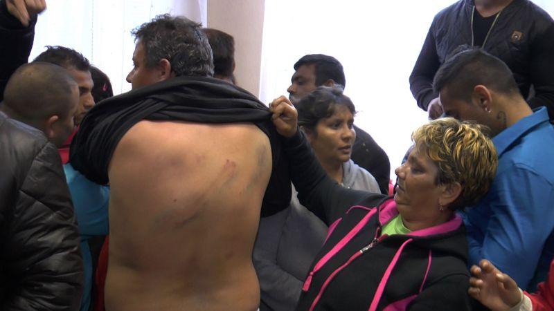 Rómovia ukazujú rany po obuškoch. Foto: Gipsy Television