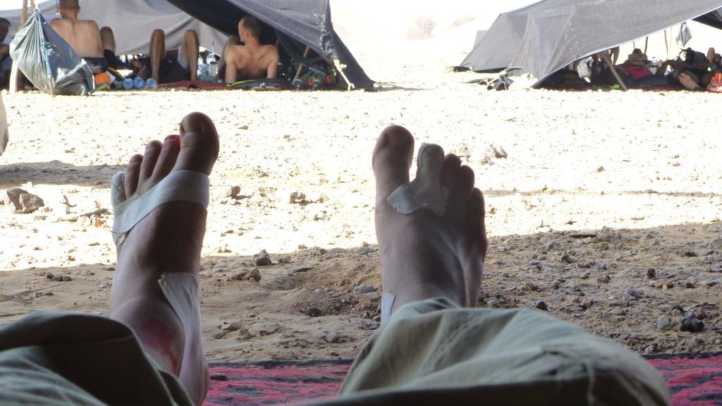 Stav šliap na piesočnom ultramaratóne