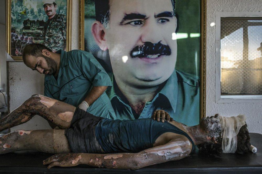 Správy: Prvé miesto: Bojovník islamského štátu v kurdskej nemocnici. Foto – Mauricio Lima